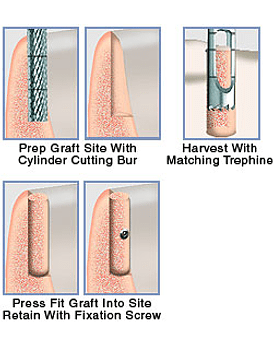 Bone Cylinder Graft Transfer System