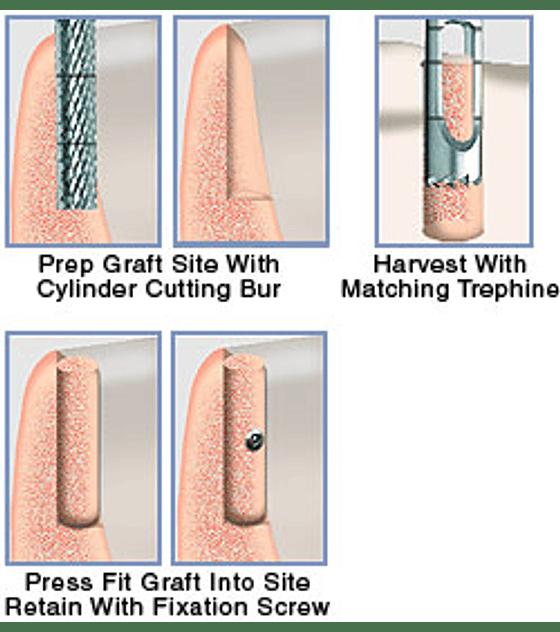Bone Cylinder Graft Transfer System