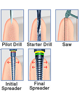 Meisinger Basic Bone Spreading System