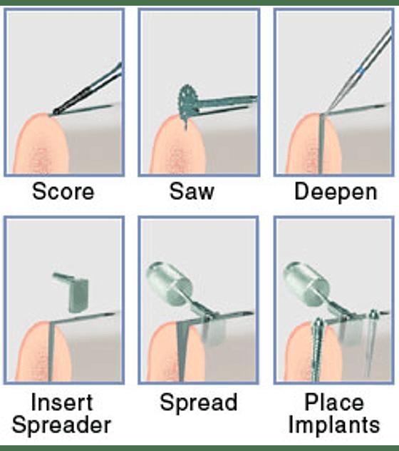 Meisinger Basic Ridge Splitting System