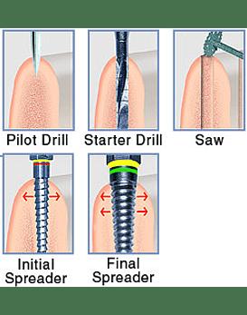 Meisinger Comprehensive Bone Spreading System