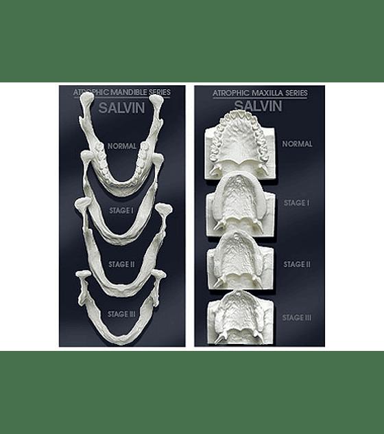 Bone Loss Model Set