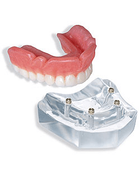 4 Implant Locator™ Abutment Upper Overdenture
