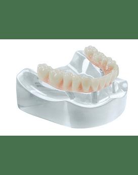 Complete Restoration On 4 Implants Model