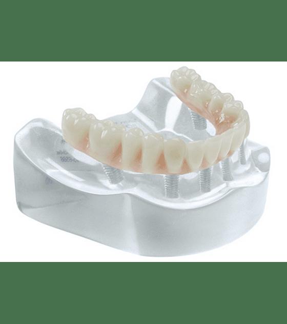 Complete Restoration On 6 Implants Model