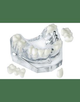 3 Unit Bridge On 3 Implants & Single Crown On 1 Implant & 3 Unit Natural Bridge
