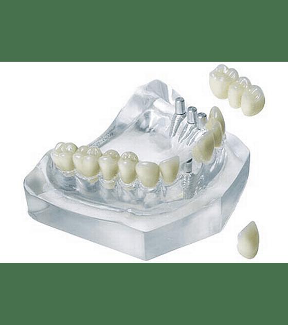 3 Unit Bridge On 3 Implants & Single Crown On 1 Implant