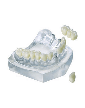 3 Unit Bridge On 2 Implants &
