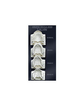 Maxilla Bone Loss Model Set