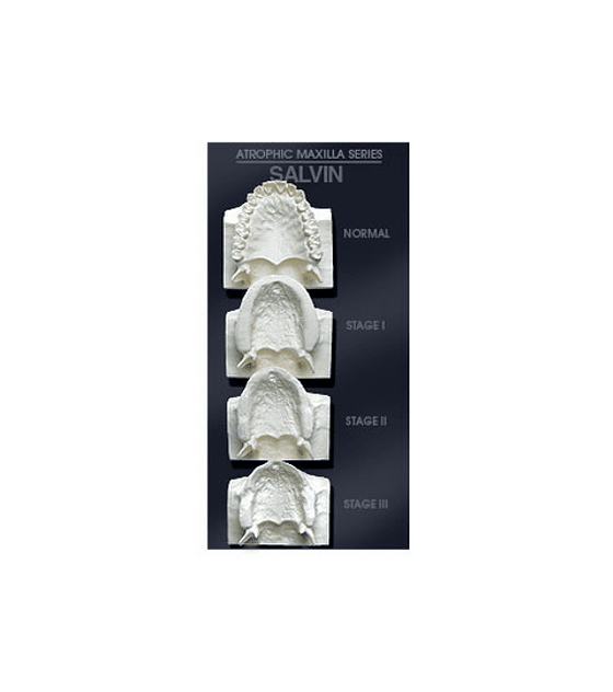 Maxilla Bone Loss Model Set