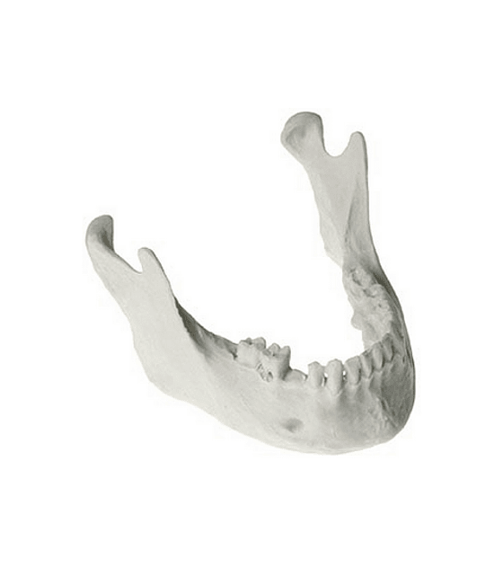 Perio Defect Mandible