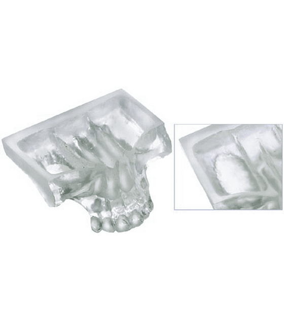 Clear Model Showing Sinus Graft
