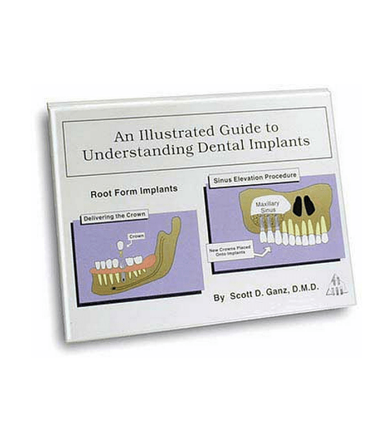 Illustrated Implant Guide (Spanish)by Dr. Scott Ganz