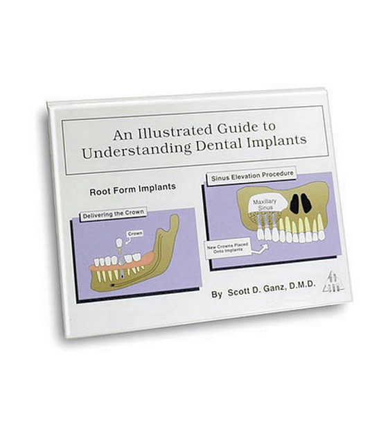 Illustrated Implant Guideby Dr. Scott Ganz