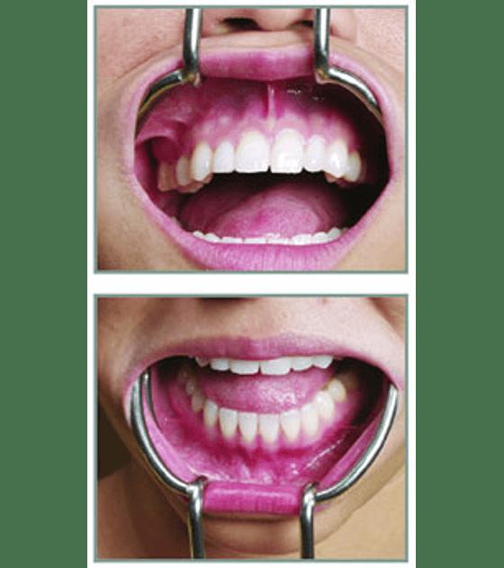Implant Retractor