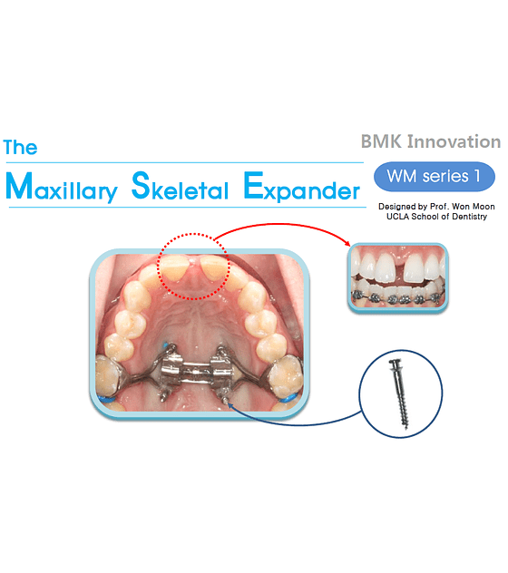 Expansor MSE Kit