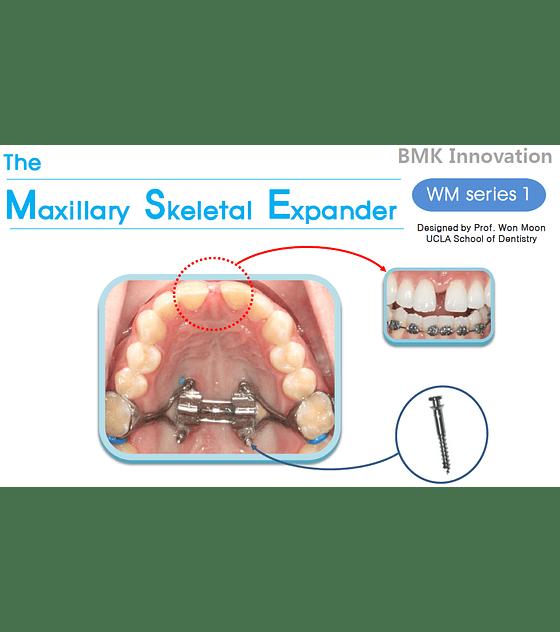 Expansor MSE Refill Kit