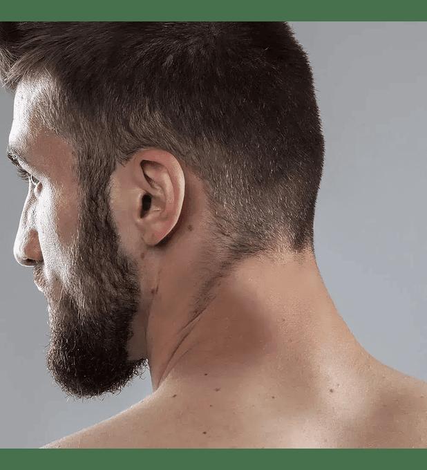 Depilación láser masculina cuello posterior