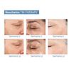 Serum antienvejecimiento de rostro