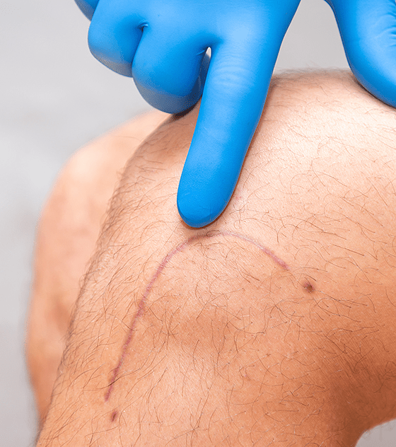 Reducción enzimática de cicatrices
