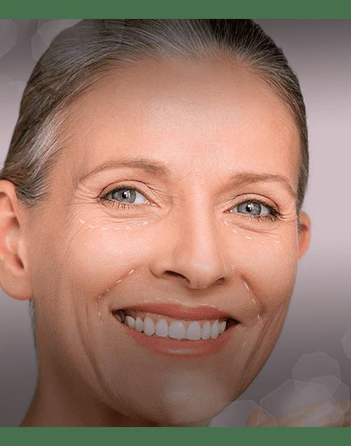 Recupera volumen y elimina surcos con Relleno de Ácido Hialurónico