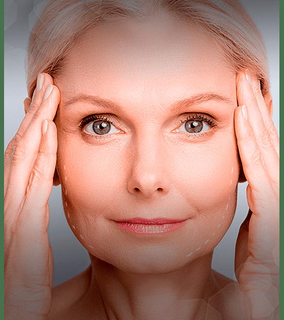 Vitaminas para tu piel con 1 sesión de Mesoterapia Cytocare con Microneedling