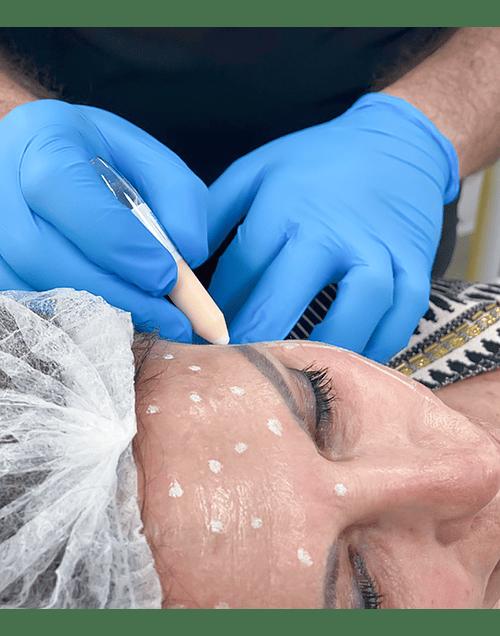 Pack adiós arrugas y surcos con Toxina Botulínica 3 zonas + Relleno de Ácido Hialurónico