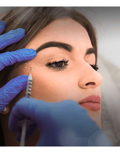 Eliminación de arrugas con Toxina Botulínica 2 zonas