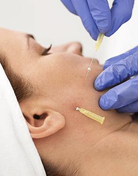Recupera firmeza en rostro o cuello con Hilos Tensores Redensificantes