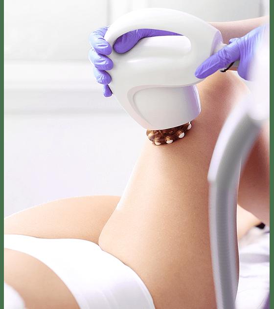 Reafirma y tonifica tu piel con Radiofrecuencia TriPollar