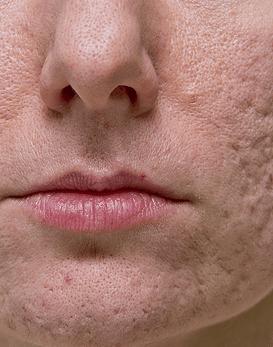 Reducción enzimática secuelas de acné