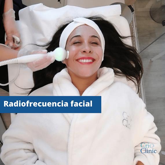 Radiofrecuencia Facial (6 sesiones)
