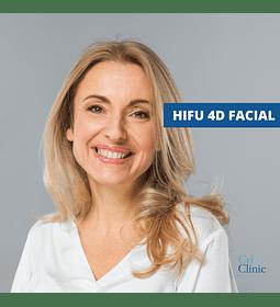 HIFU Facial: Rostro completo