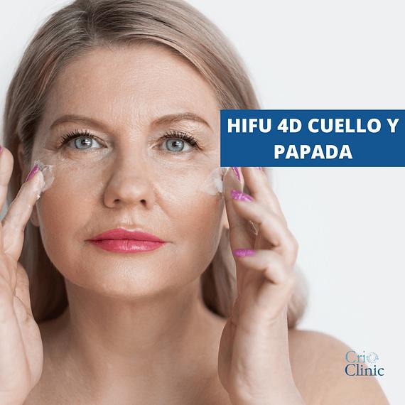 HIFU Facial: Papada y cuello