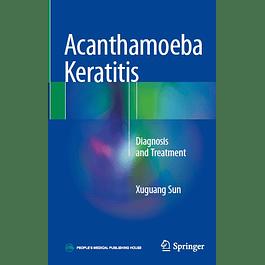 Acanthamoeba Keratitis: Diagnosis and Treatment