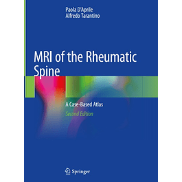 MRI of the Rheumatic Spine: A Case-Based Atlas