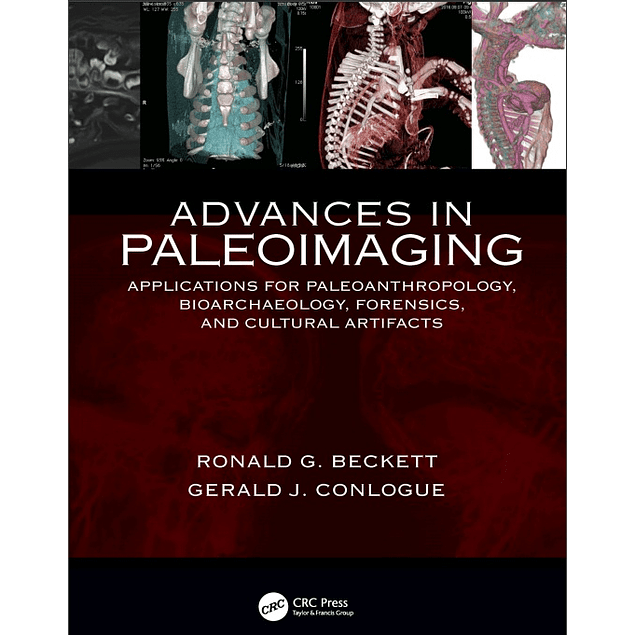 Advances in Paleoimaging: Applications for Paleoanthropology, Bioarchaeology, Forensics, and Cultural Artifacts
