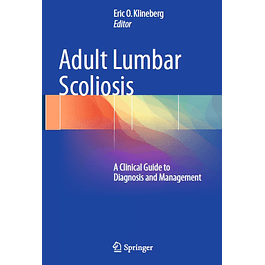 Adult Lumbar Scoliosis: A Clinical Guide to Diagnosis and Management
