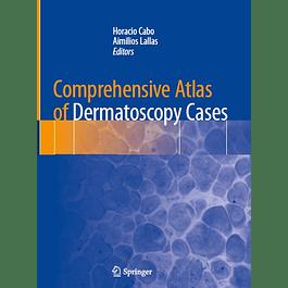Comprehensive Atlas of Dermatoscopy Cases