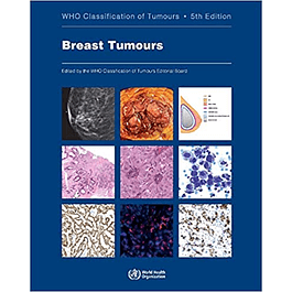 Breast Tumours: WHO Classification of Tumours