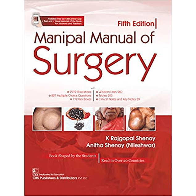 Manipal Manual of Surgery  5th Edition  by K. Shenoy Rajgopal (Author), N. Shenoy Anitha (Author) ISBN-10: 9389261791 ISBN-13: 978-9389261790 ASIN: B085VPWHW9