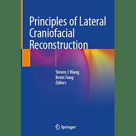Principles of Lateral Craniofacial Reconstruction