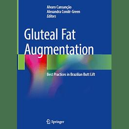 Gluteal Fat Augmentation: Best Practices in Brazilian Butt Lift