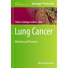 Lung Cancer: Methods and Protocols