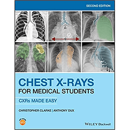 Chest X-Rays for Medical Students: CXRs Made Easy