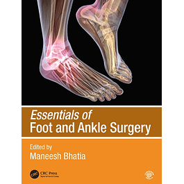 Essentials of Foot and Ankle Surgery