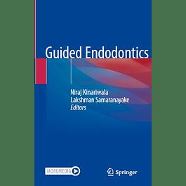 Guided Endodontics