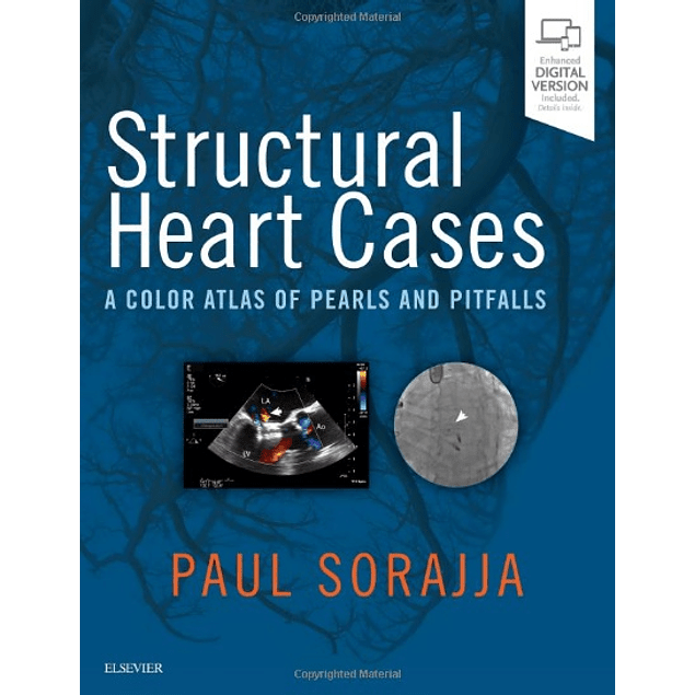 Structural Heart Cases: A Color Atlas of Pearls and Pitfalls