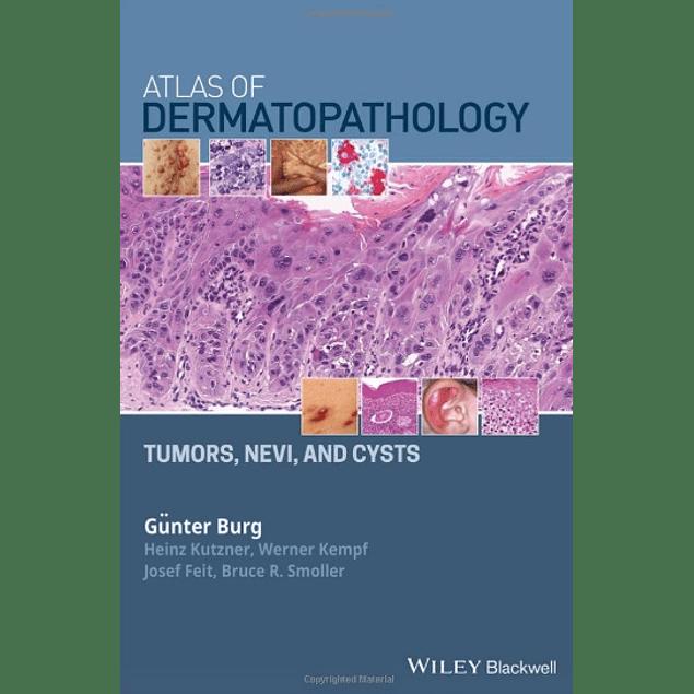 Atlas of Dermatopathology: Tumors, Nevi, and Cysts