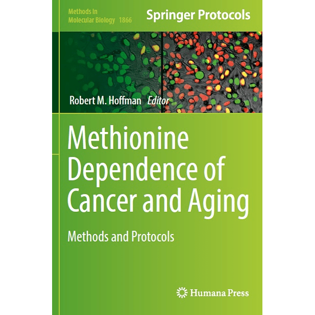 Methionine Dependence of Cancer and Aging: Methods and Protocols